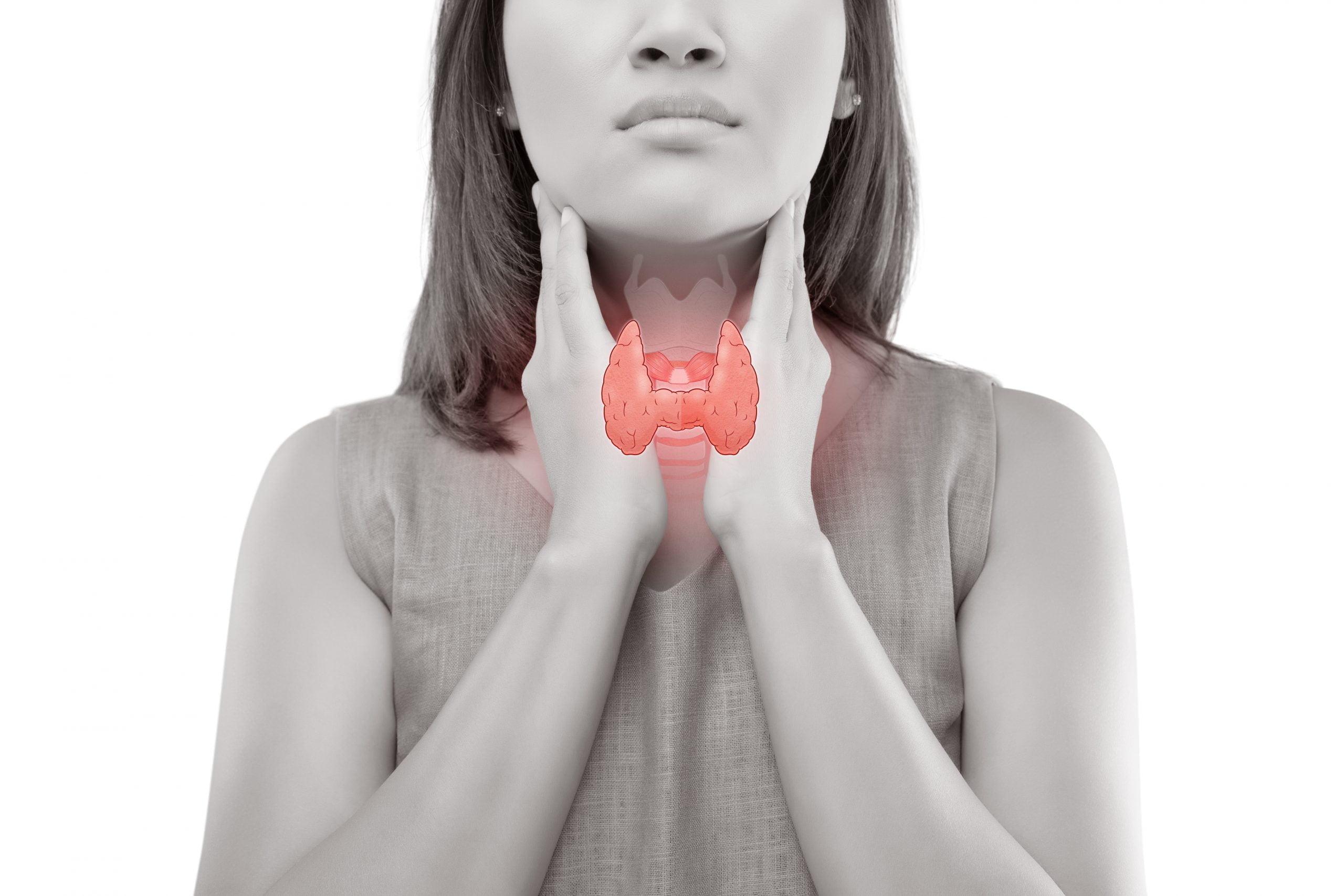 甲狀腺結節原因