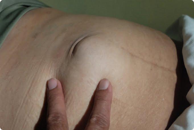 小腸氣手術