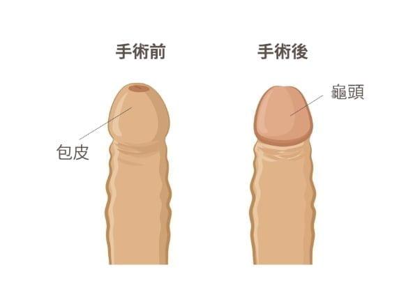 激光包皮環切手術