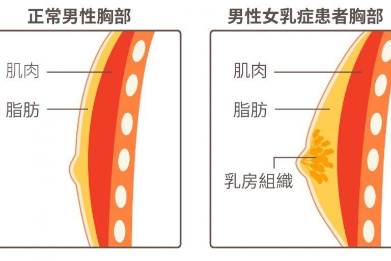 男性女乳症治療