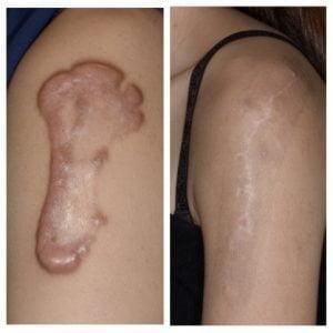 蟹足腫治療成功