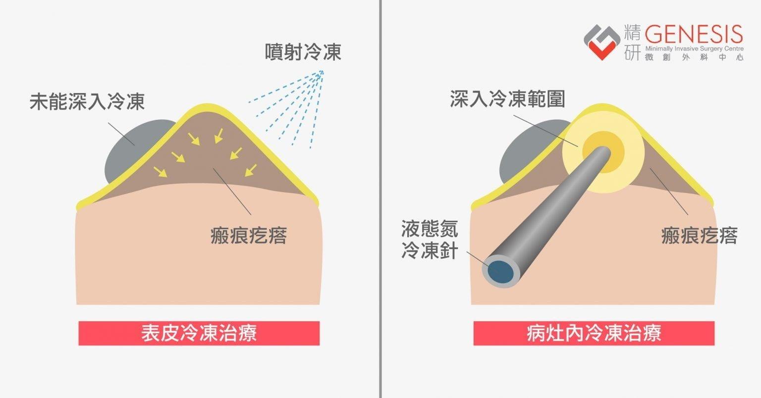 蟹足腫冷凍治療