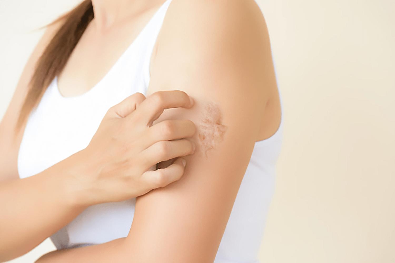 蟹足腫放射治療