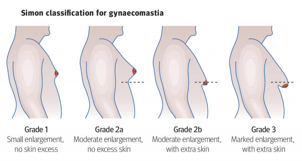 男性女乳症檢測